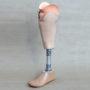Prótesis con Encaje Blando y Socket en Resina Acrílica