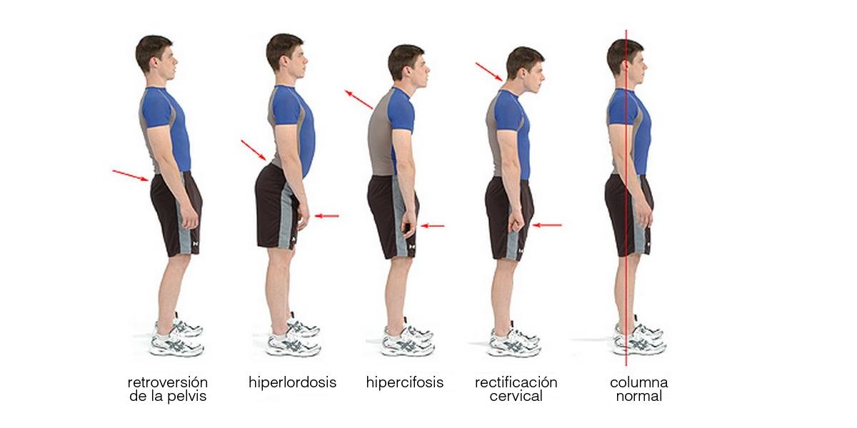 deformaciones de columna primera parte lordosis ortopedia mostkoff
