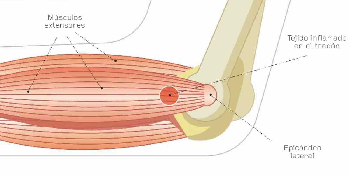 Epicondilitis o codo de Tenista o Golfista – Ortopedia Mostkoff
